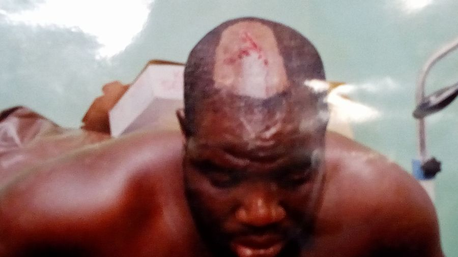 The body of bro Denson Ukela after he was beaten to the point of death but was delivered by the God of Chosen